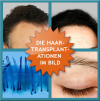 Hairloss Propecia Research